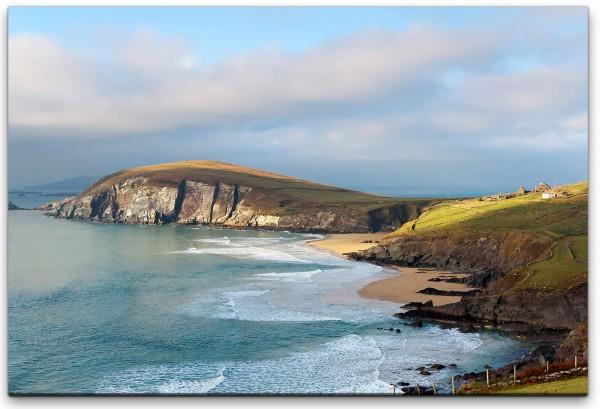 Irland Insel Wandbild in verschiedenen Größen