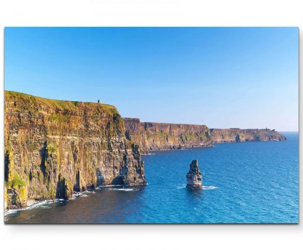 Steilküste in Irland - Leinwandbild